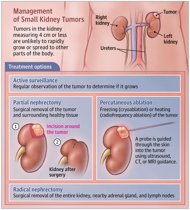 Small Kidney Tumors Kidney Tumor Tumor Surgery Nursing