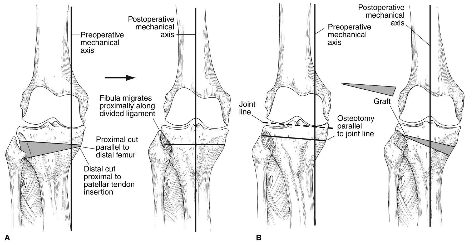 Fulkerson Osteotomy