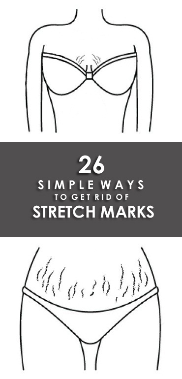 How to Get Rid of Stretch Marks Fast and Naturally? | Styles At Life -   17 how to get rid of stretch marks ideas