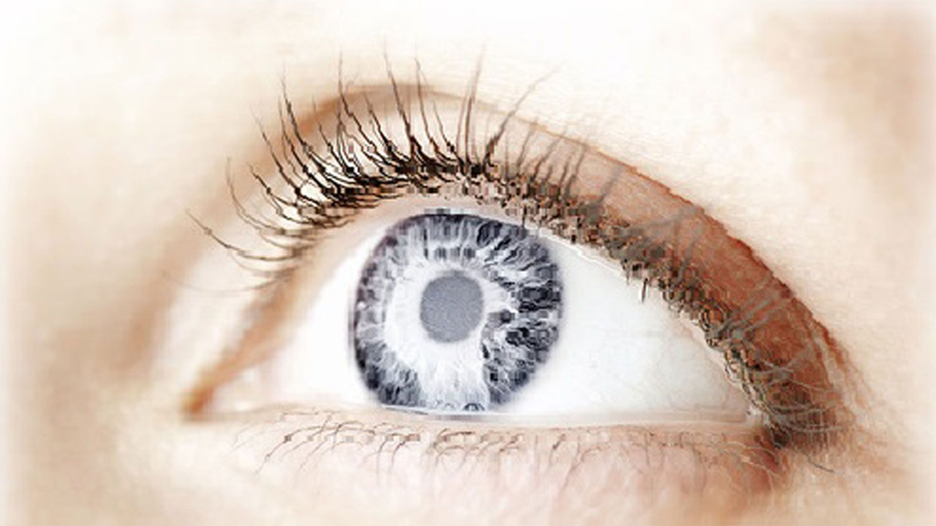 What Is The Cost Of Lasik Eye Surgery In Cancun Mexico Laser Eye Surgery Cost Eye Floaters Treatment Foot Fungus Treatment