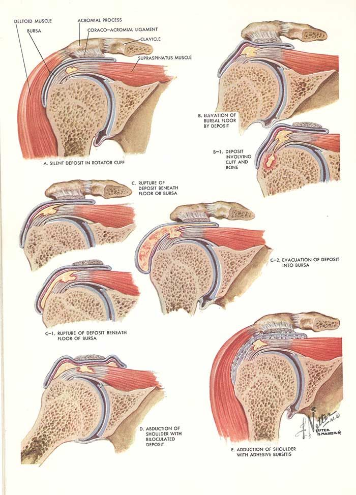 Anatomy and injuries of the shoulder