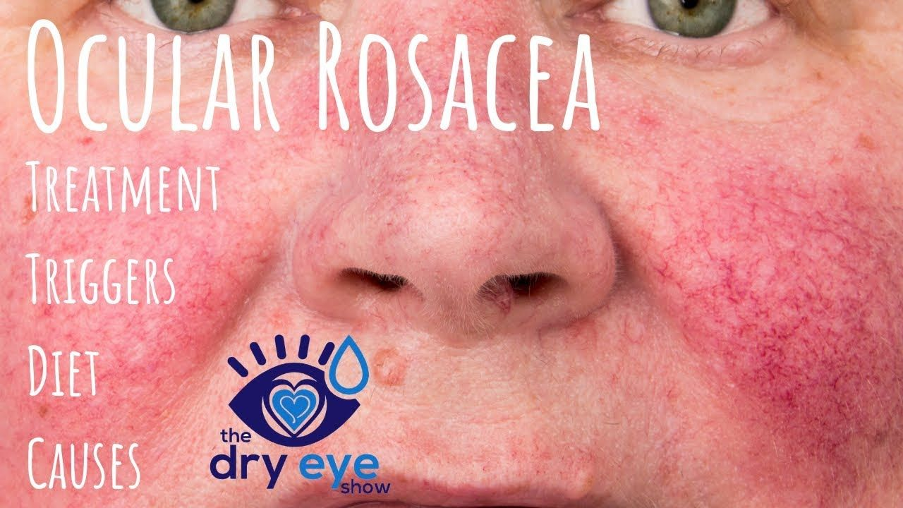 Best Of Best Eye Makeup Remover For Ocular Rosacea And
