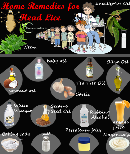 e67845cd9d23e24071b294daf22a55ff - How To Get Rid Of Head Lice With Baby Oil