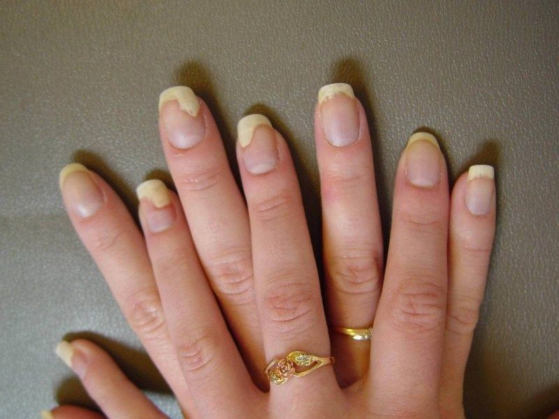 1 Shares Pin Share TweetOur nails even though not any sort of muscle ...