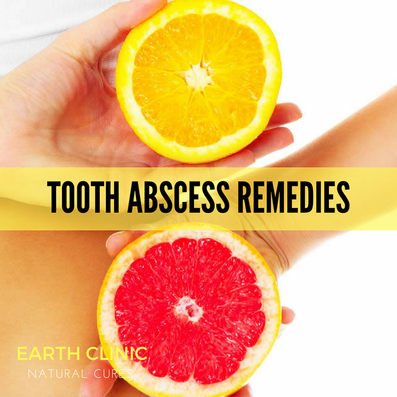 Tooth Abscess Treatment Homeopathic