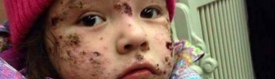 Canada Is Evacuating Kids From This First Nation Because of a Mysterious Rash