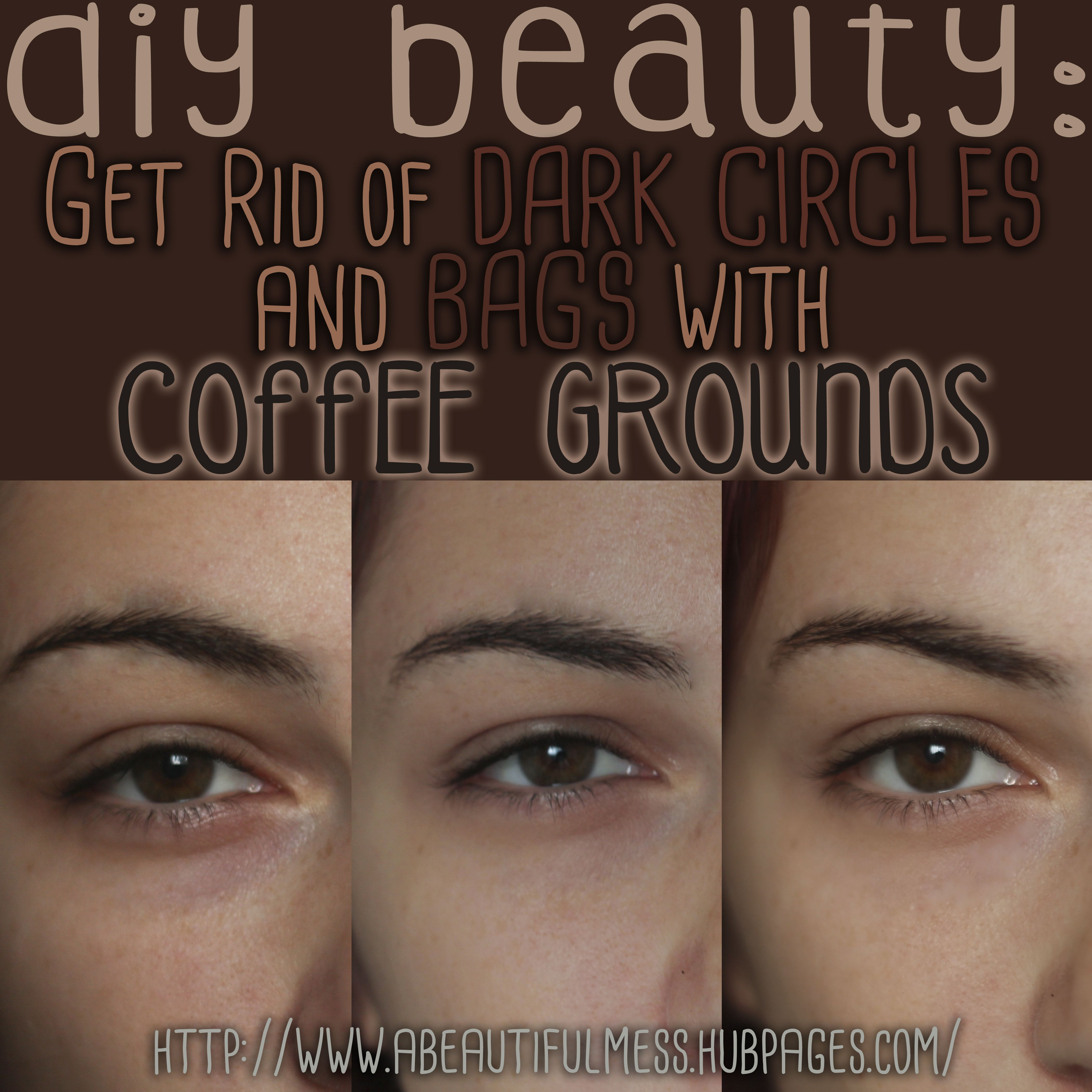 Diy beauty get rid of undereye bags and dark circles with