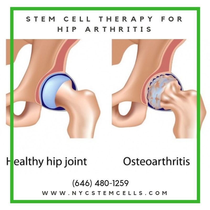 The Hip Is A Ball And Socket Joint The Socket Is Formed By The Acetabulum Which Is Part Of The Large Pelvis Bone The Ball Is The Fem Regenerative Medicine Stem Cell Therapy