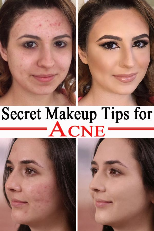 Secret Makeup Tips for Acne Acne in 2020 Covering