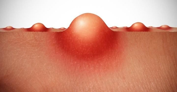Vaginal Pimples Causes: 8 Homes Remedies to Treat