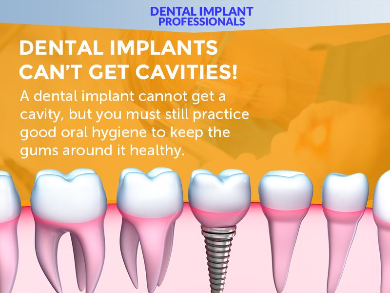 Pin by Nirali Sheth on Dental infographics in 2020