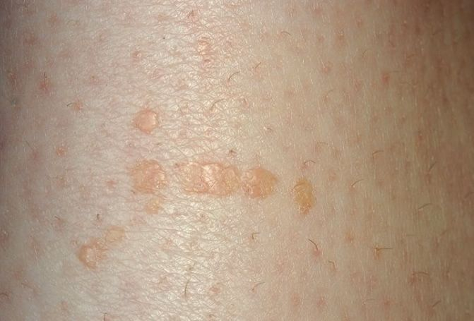 Pin On Blemishes And Lesions