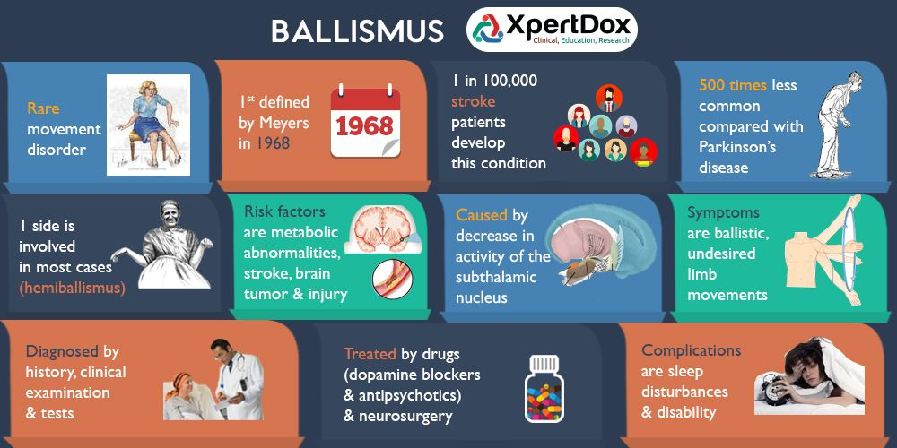 Ballismus - A rare movement disorder | Genetic disorders ...