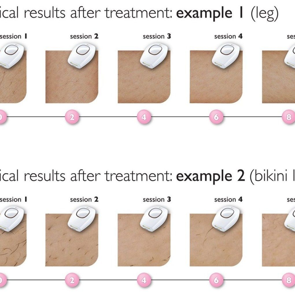 Product Review Philips Lumea Comfort Ipl Hair Removal System