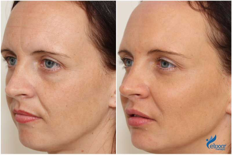 Before and after cheek, under eye and lip enhancement with dermal