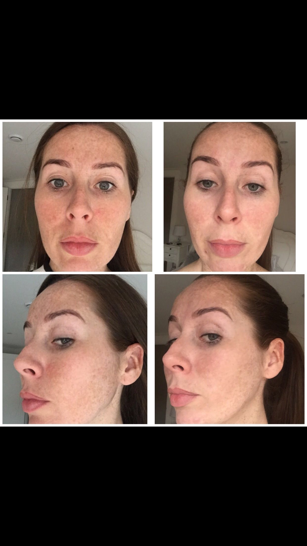 Freckle Removal Before And After Pulse Light Clinic London Using Picosure Laser Free Consultation Patch Pulse Light Laser Skin Treatment Skin Treatments