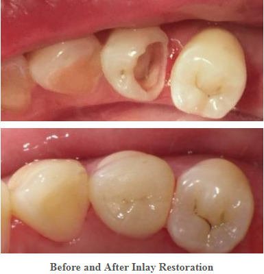 How Long Can Porcelain Inlay Last Dental Fillings Dental Restoration Tooth Filling