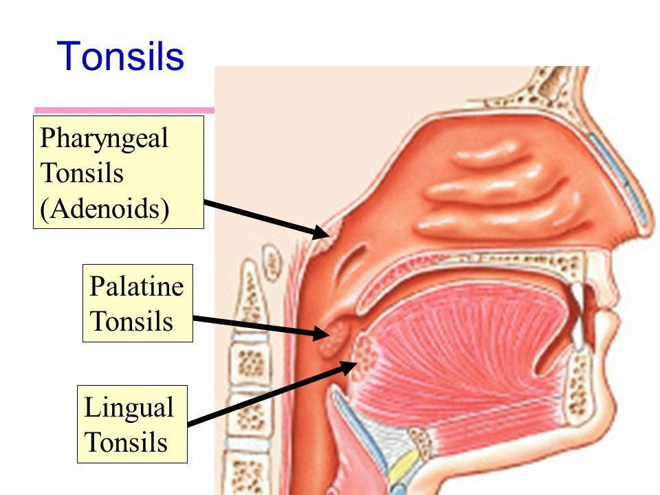 Image Result For Pharyngeal Tonsils Tonsil Tonsil Stone