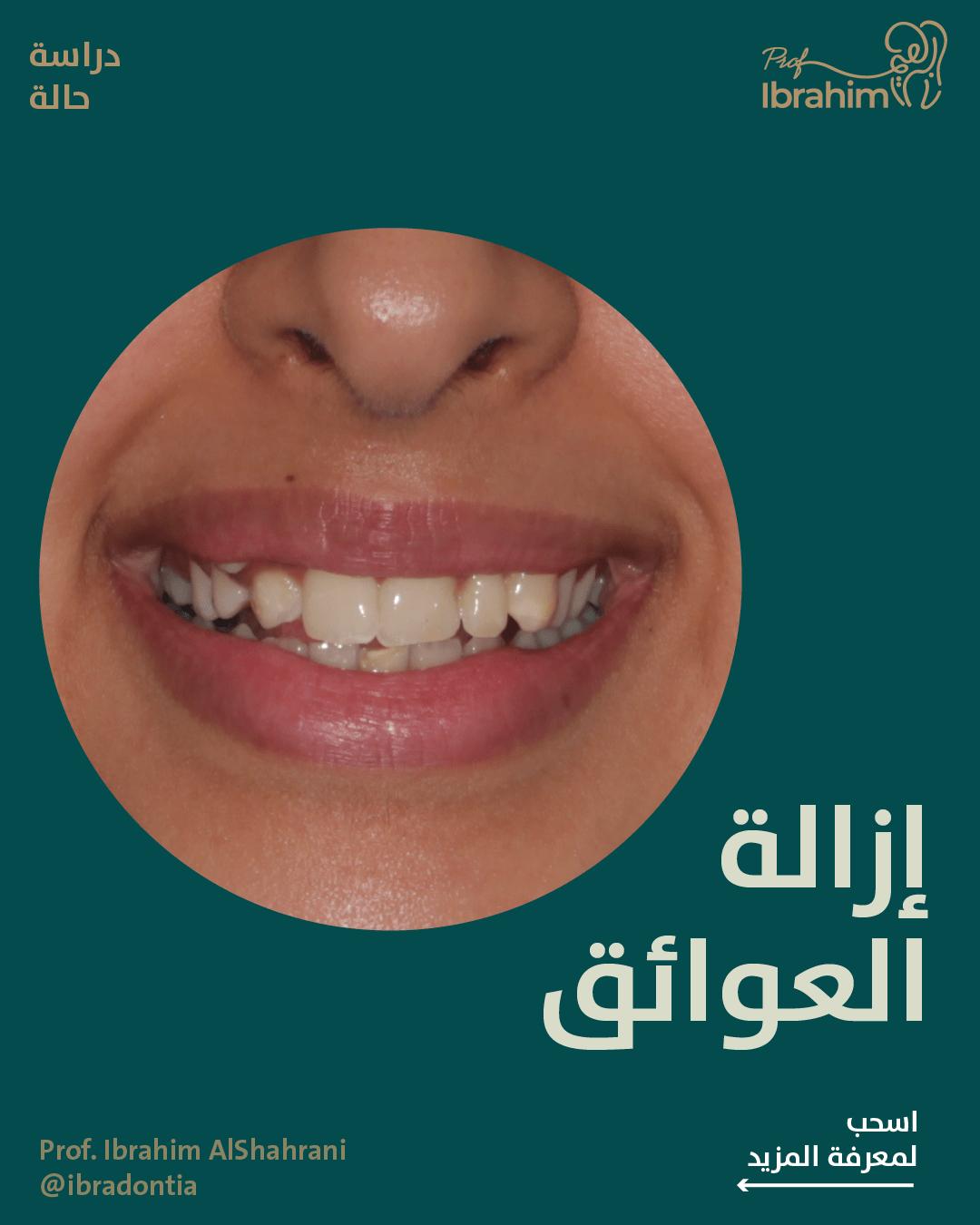 ازالة العوائق في تقويم الاسنان Instagram Movie Posters Poster