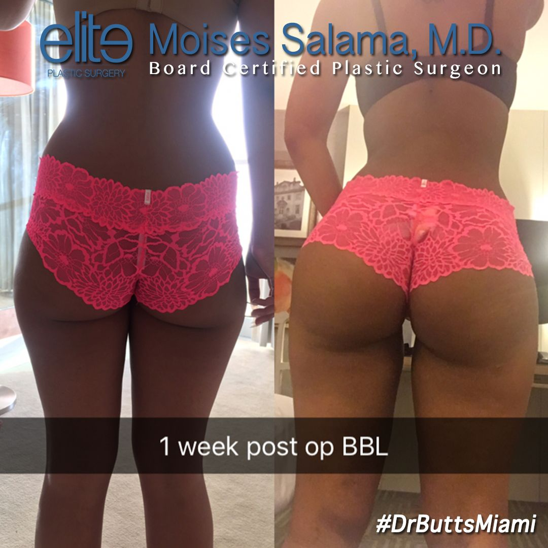 1 Week Post Op Bbl By Dr Moises Salama Beforeandafter Drbuttsmiami Salamafied Fattransfer Brazilian Buttlift Surgery Mommy Makeover Brazilian Buttlift