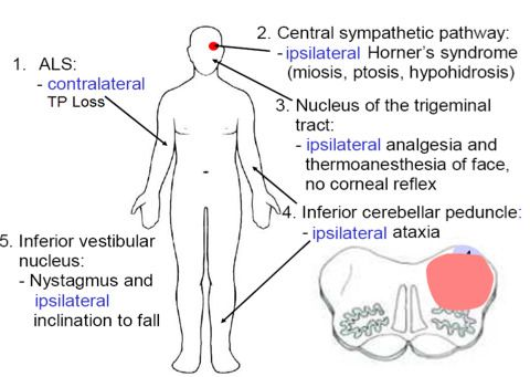 Image result for wallenberg syndrome | neuro anatomy | Pinterest ...