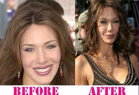 pamela anderson plastic surgery gone bad not good pinterest