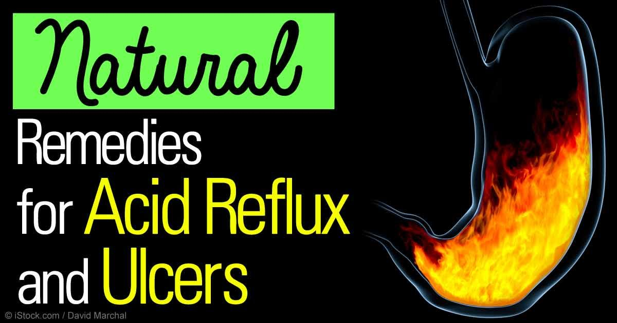 how to stop gastric reflux naturally