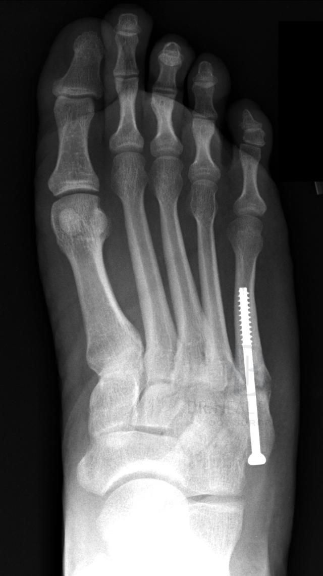 Types Of 5th Metatarsal Fractures Metatarsal Fracture Foot Surgery Recovery Jones Fracture