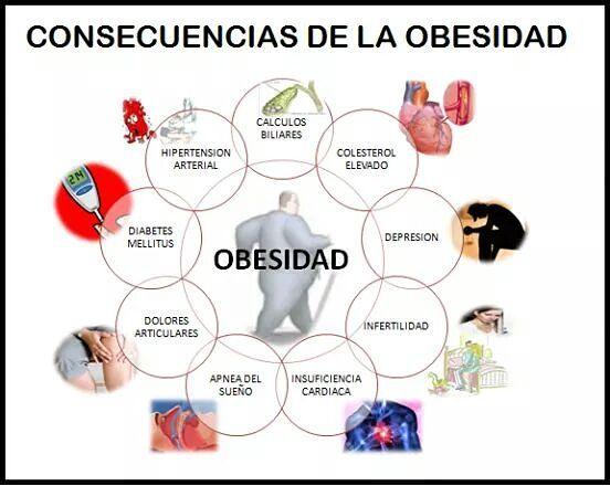 Consecuencias de la obesidad. | Health | Pinterest