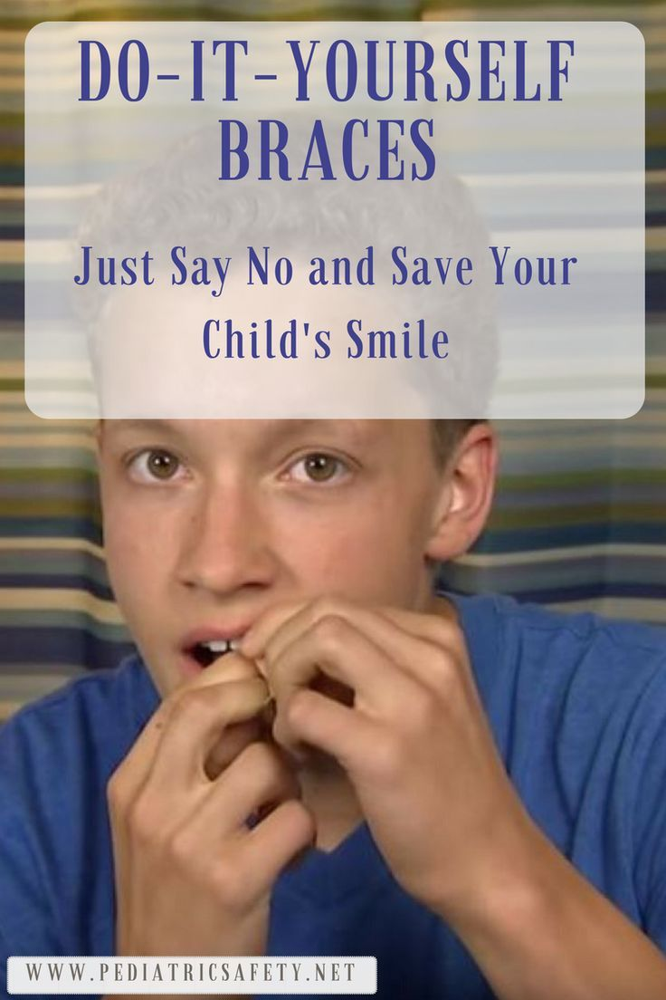 DoItYourself Braces Just Say No and Save Your Childs Smile