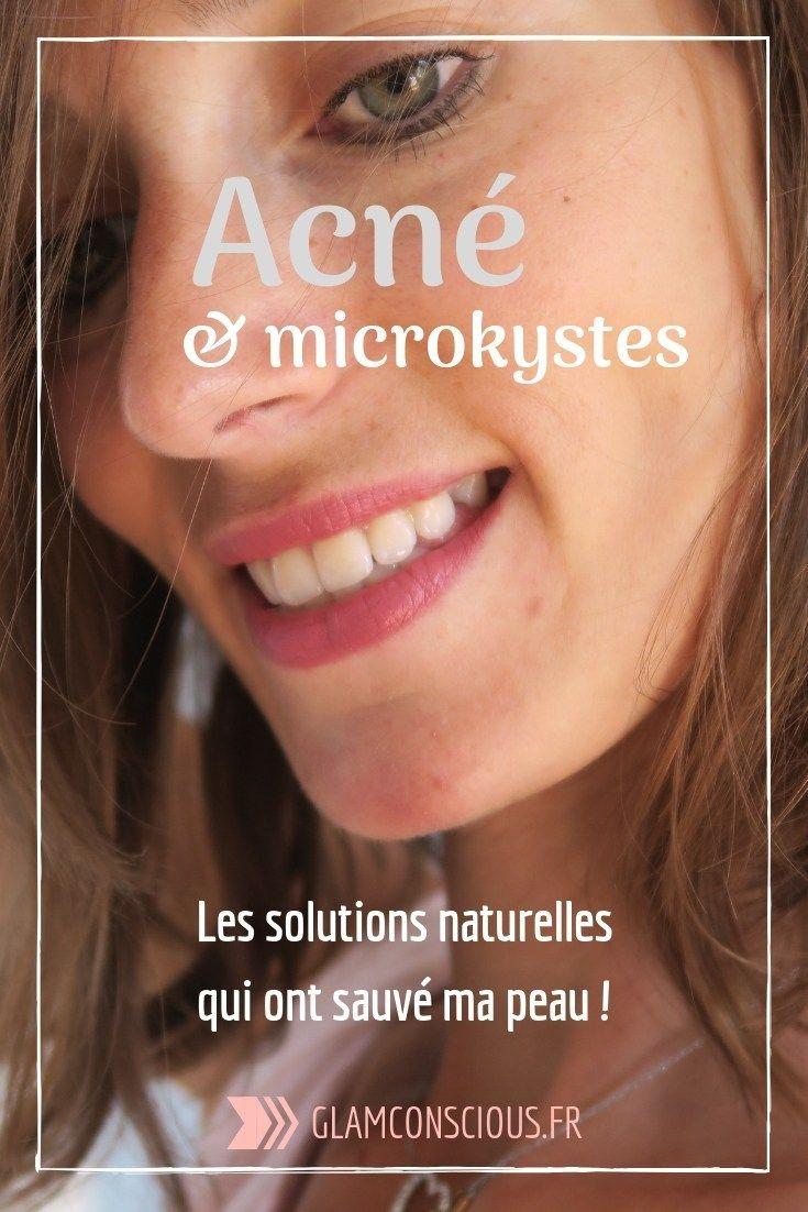 Acné et microcystes: la solution naturelle qui a sauvé ma peau