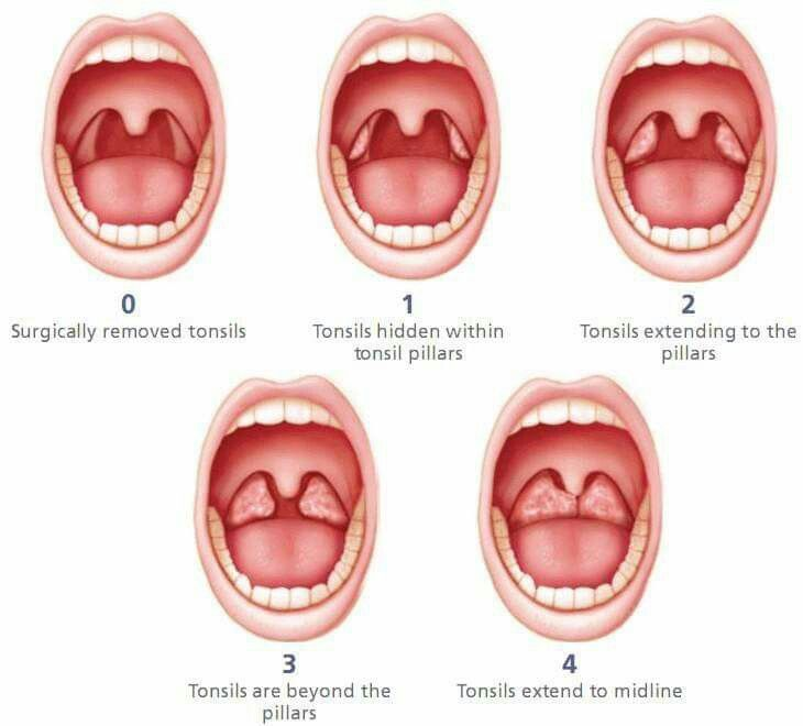 Tonsillitis adult symptom