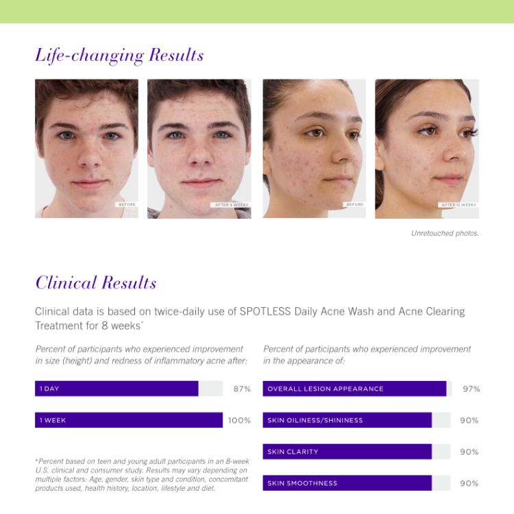 Spotless For Acne In Teens And Young Adults Acne Acnetreatment Skincare Teenacne Adultacne Spotless 1skincare Rodanandfields Rodan Fields Rodan And Fields