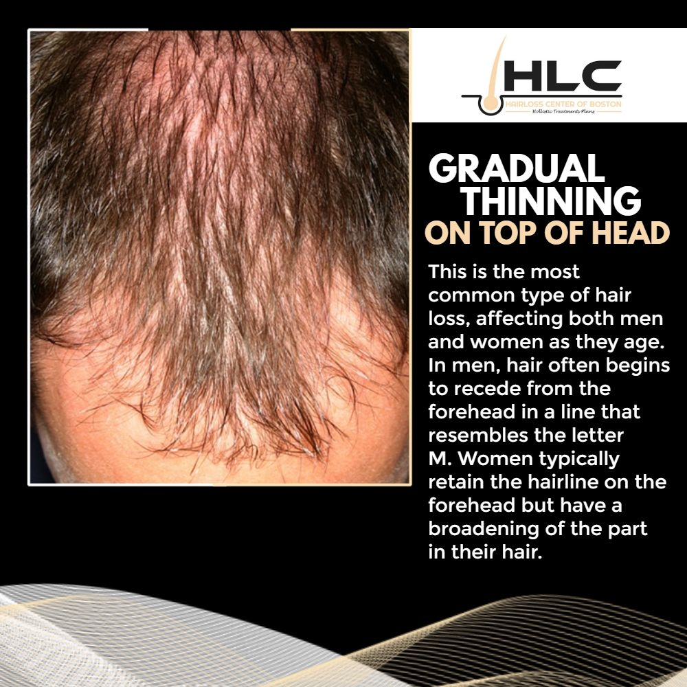 Gradual Thinning On Top Of Head This Is The Most Common Type Of