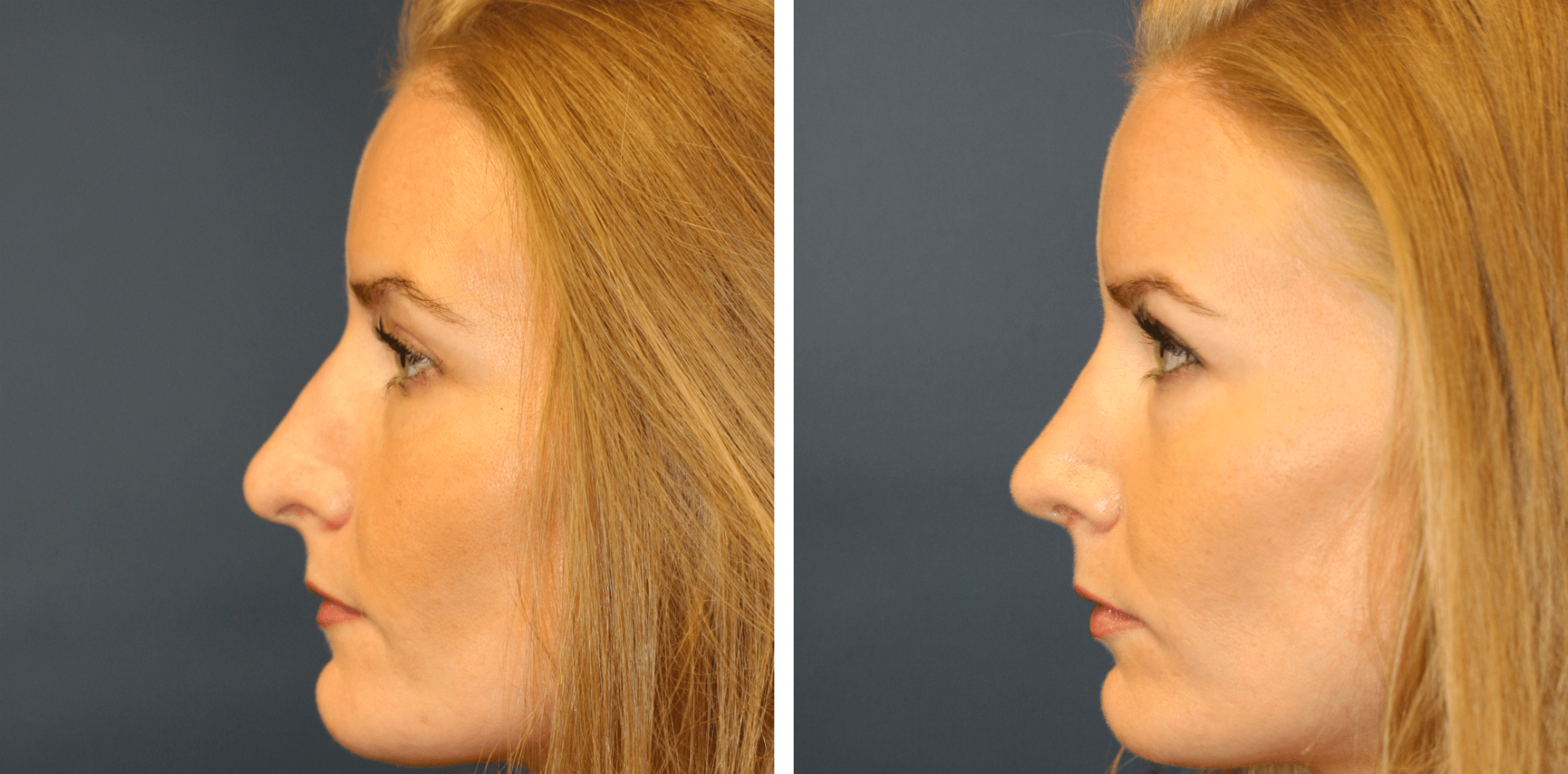 How long does it take to recover from rhinoplasty ...