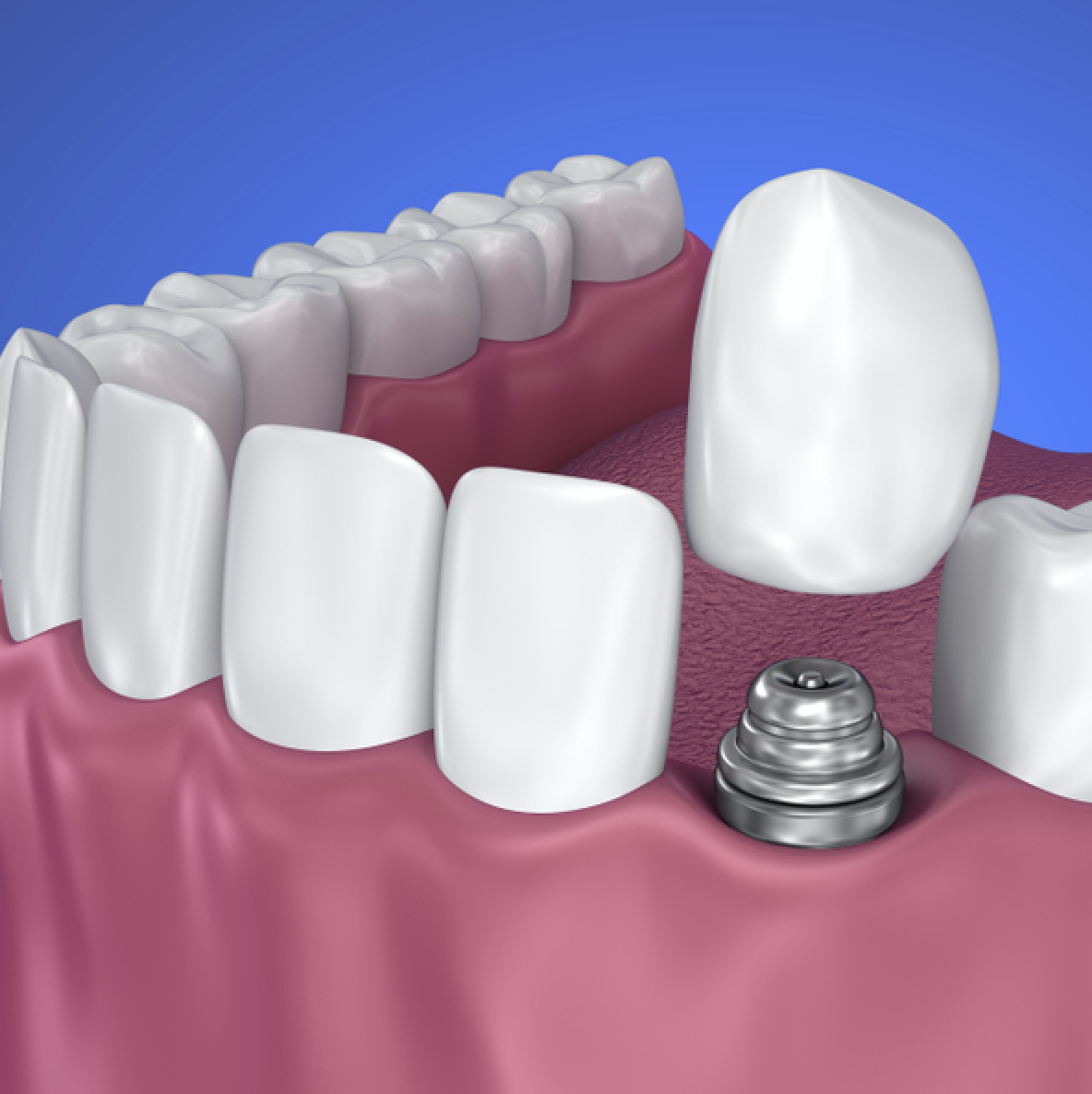 A dental crown is a natural-looking cap which is placed ...