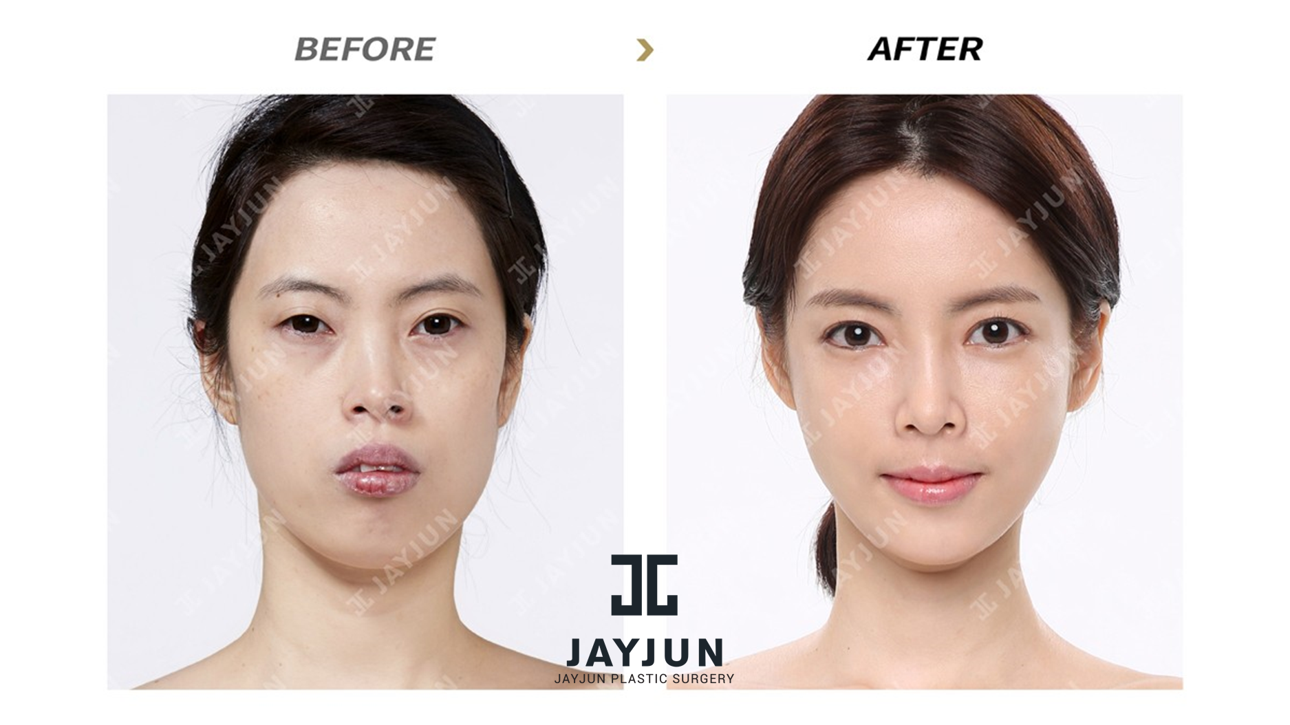 plastic surgery south korea Jw plastic surgery center korea has main doctors who have contributed to development of korean medical field for over 20 years.