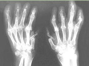 рентгеновский снимок артрит псориатрический