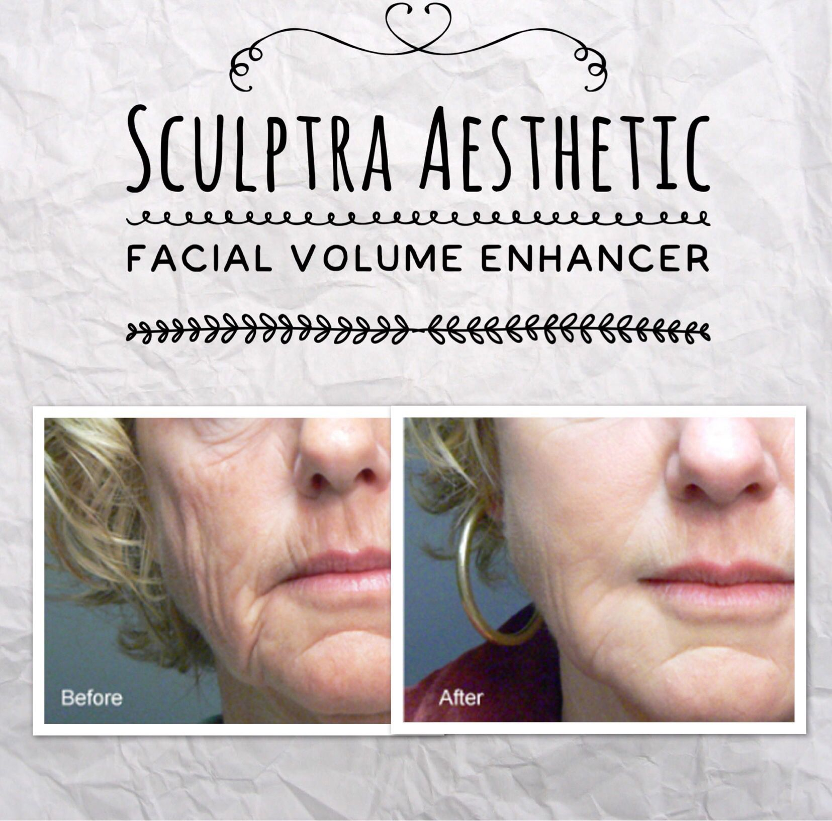 Pin On Dermal Fillers And Botox