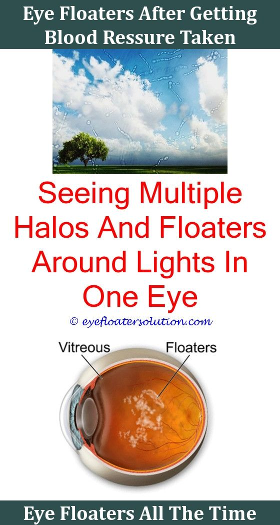 Headache Floaters Eye Pain,black Floaters In Eye After Cataract Surgery Is  There A Way To Cure Eye Floaters Is There A Way To Get Rid Of Eye Floateu2026