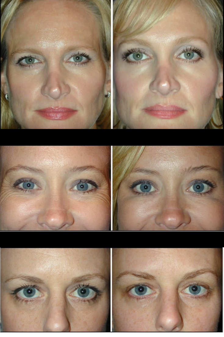botox for an eyebrow lift you would be amazed at the results and how this is working for many women who are reconsidering surgery to fix their sagging  [ 735 x 1102 Pixel ]