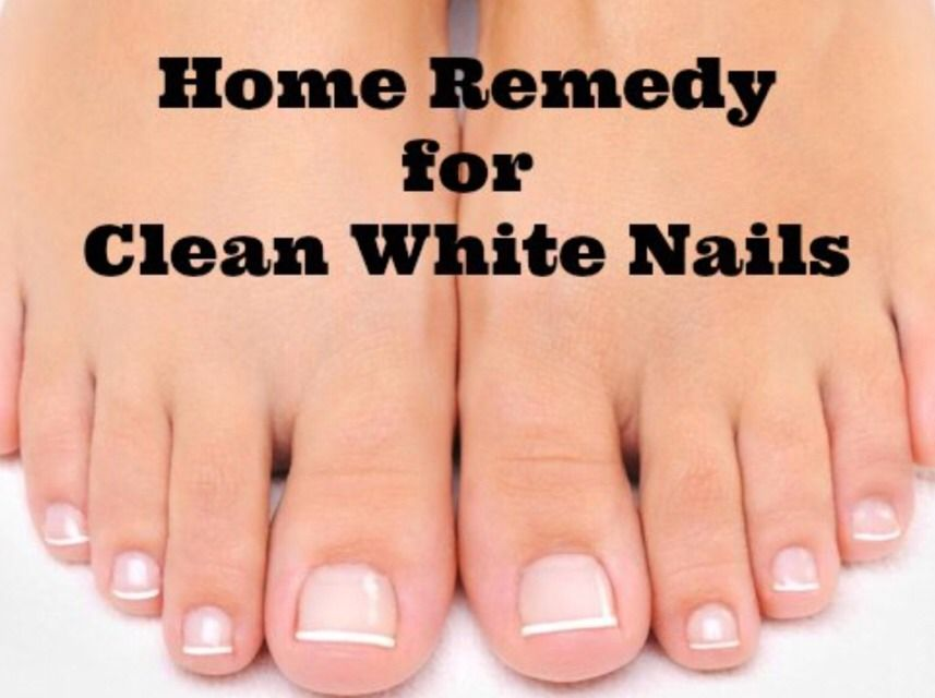 How to make your nails white and get rid of that yellow