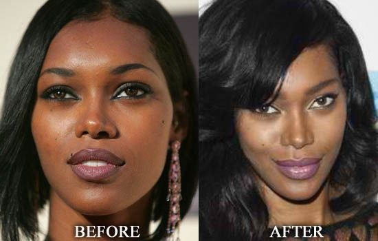 jessica white nose job before and after best