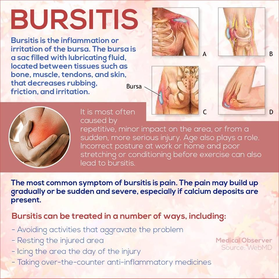 Bursitis   Die Healthy   Pinterest