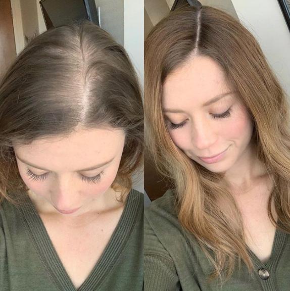 13+ Perte de cheveux femme coiffure inspiration