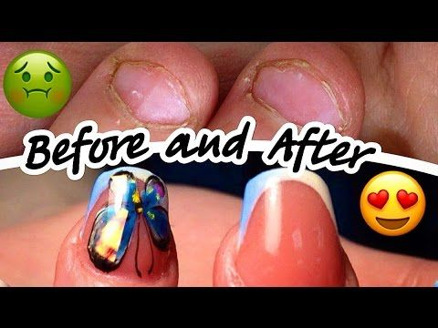 Nail Extensions On Bitten Nails How To Apply Gel