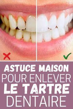 Le secret pour enlever le tartre dentaire naturellement #tartre #dent #dentiste #astuce #maison