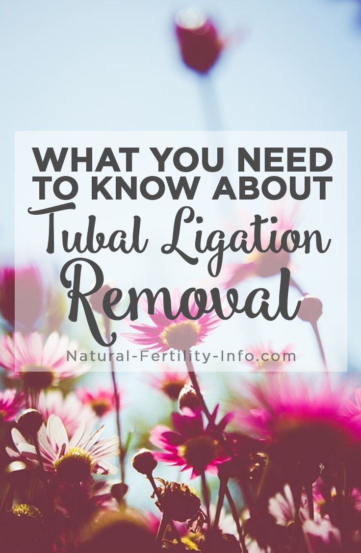 Getting Pregnant Naturally After Tubal Ligation