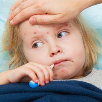 Nationwide campaign against measles to be launched http://m.edarabia.com/nationwide-campaign-against-measles-to-be-launched/82760/