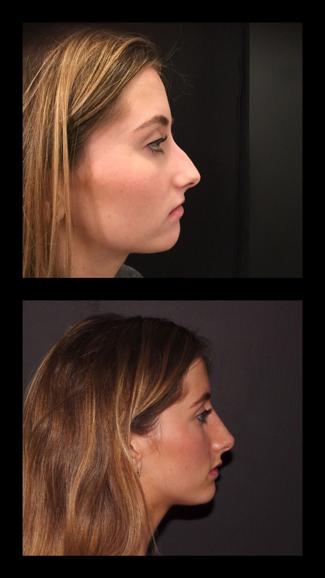 All About My Nonsurgical Nose Job (With images) Nose